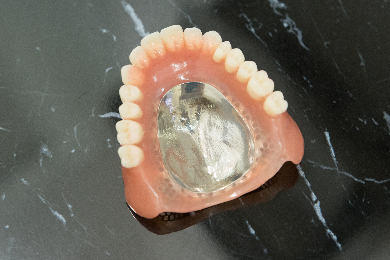 金属床入れ歯