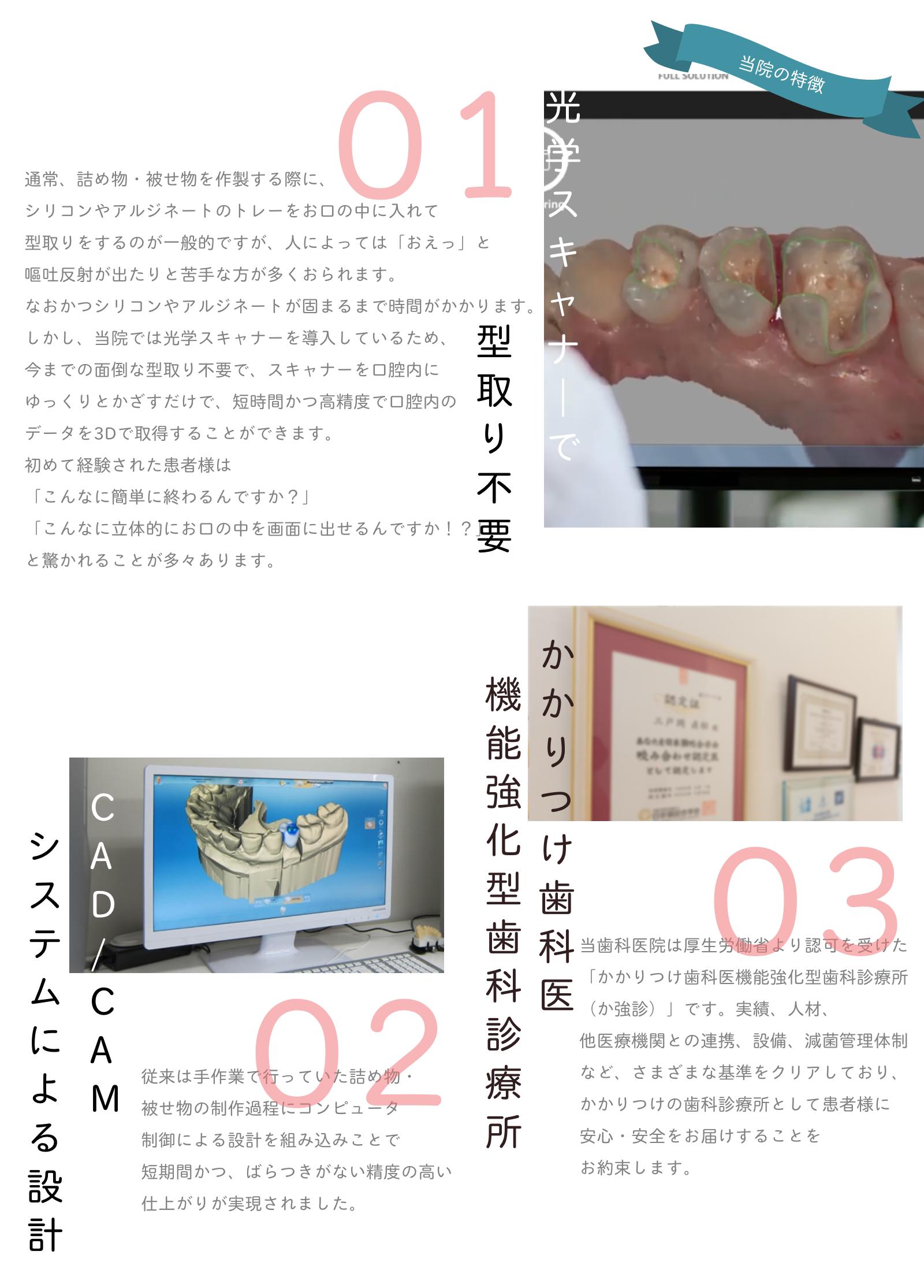 銀歯の治療においての当院の特長